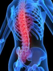 back pain treatment graphic